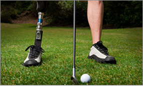 Prosthetic patient from Baton Rouge, LA playing golf